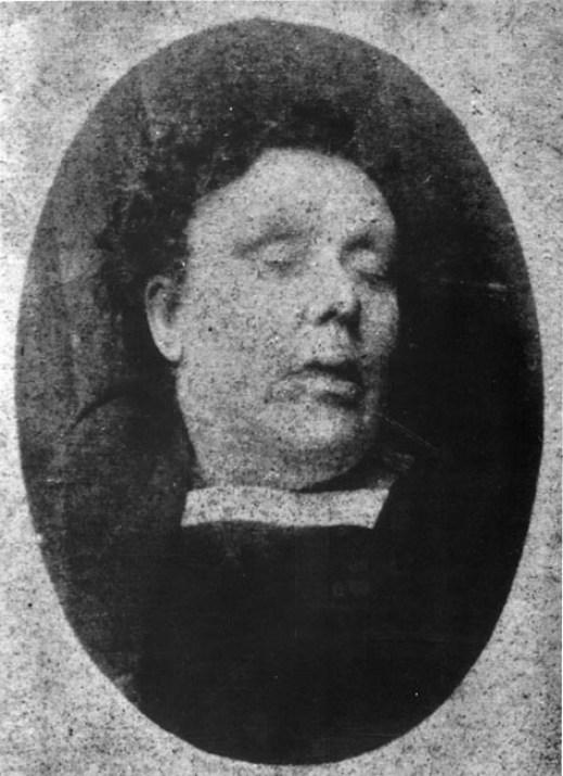 post-mortem-Annie-Chapman-Kuba-Rozpruwacz-Whitechapel-Londyn