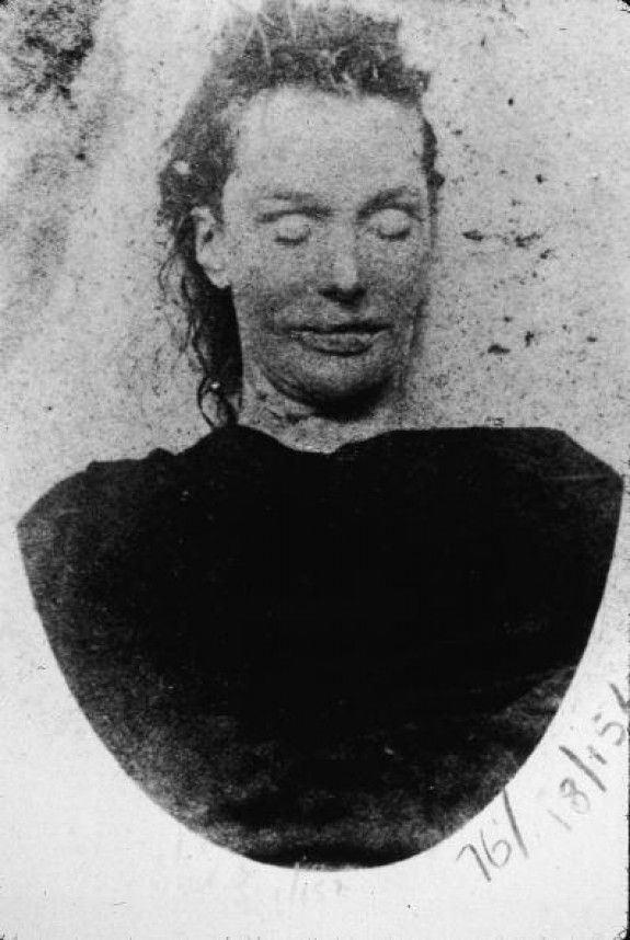 post-mortem-Elizabeth-Stride-Kuba-Rozpruwacz-Whitechapel-Londyn