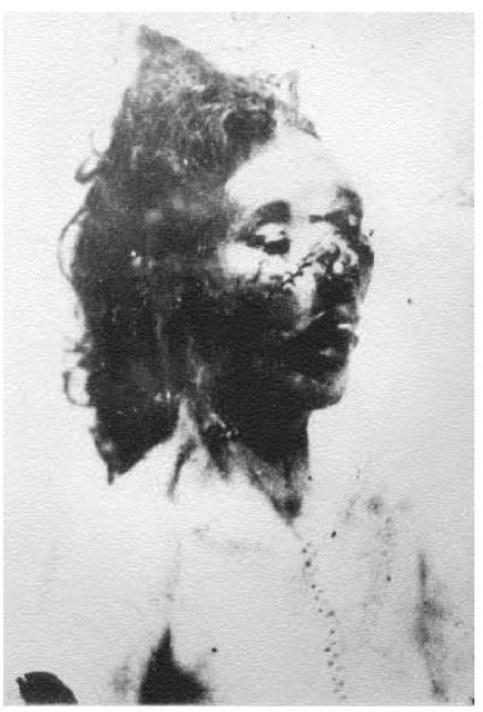 post-mortem-Catherine-Eddowes-Kuba-Rozpruwacz-Whitechapel-Londyn