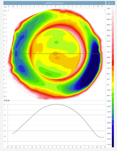 scleral topology using ESP