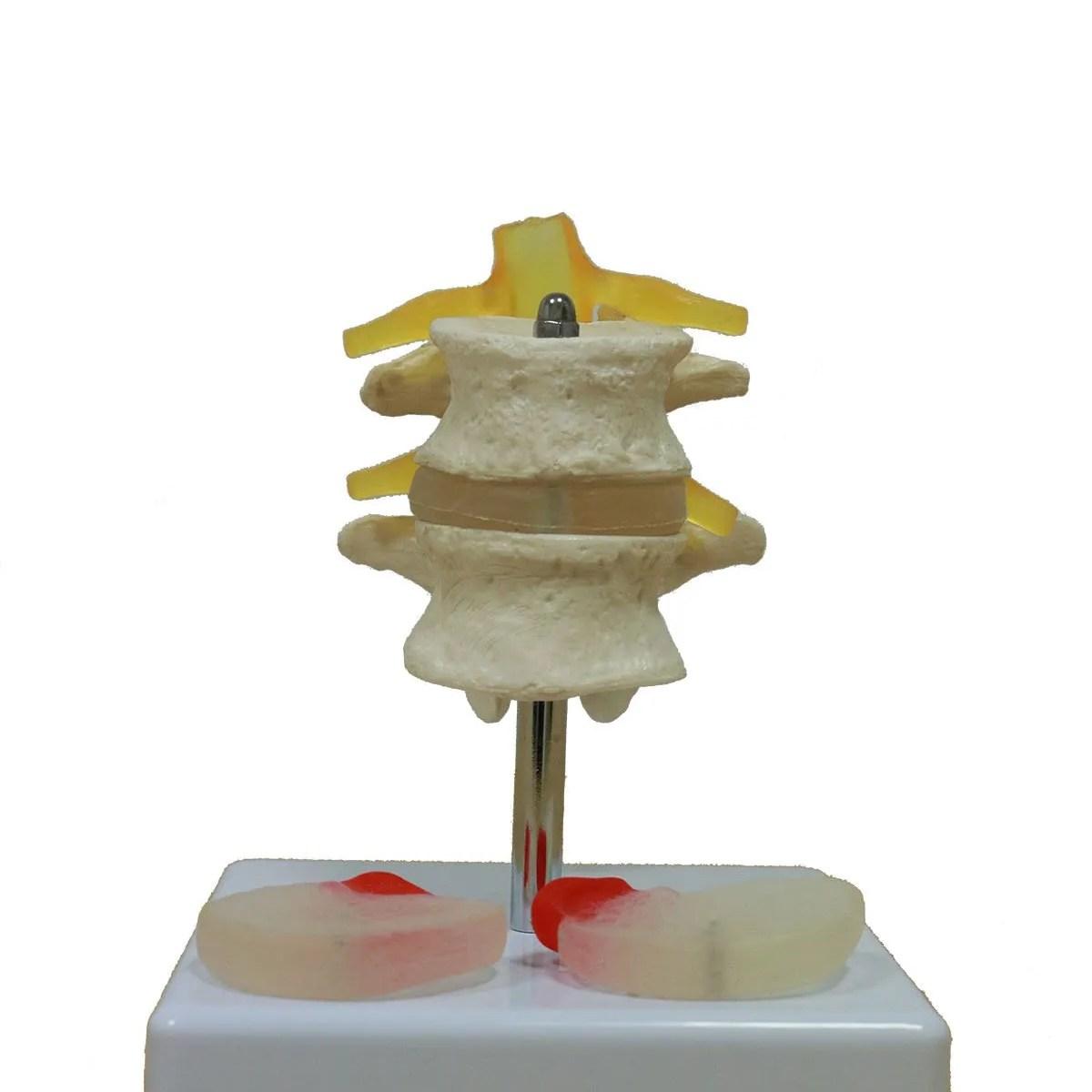 simulador-vertebral