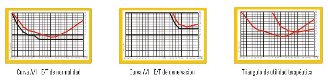 electroterapia-fisioterapia-curvas