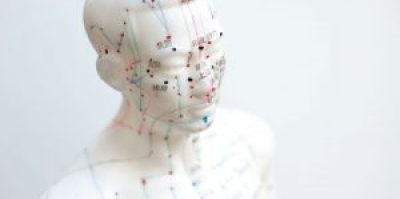 puntos acupunturales