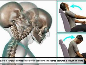 Evitar el latigazo cervical