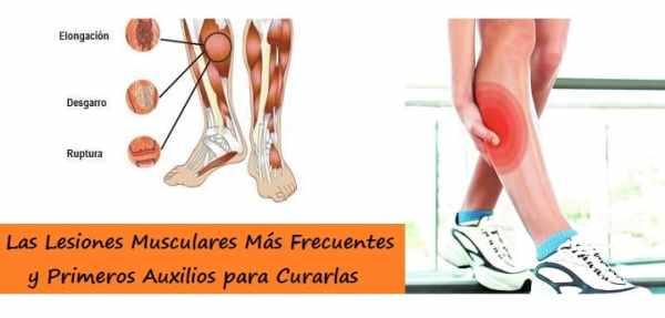 Lesiones Musculares Más Frecuentes y su Tratamiento