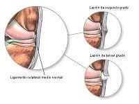 Distensión o Rotura Muscular
