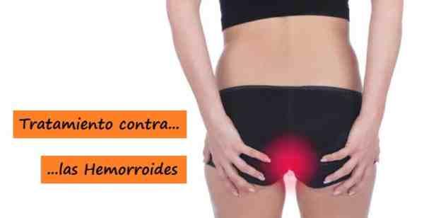 Tratamiento contra las Hemorroides