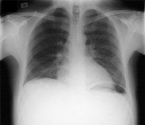 Radiografía de tórax que demuestra aire libre debajo el diafragma indicativo de una perforación intestinal.