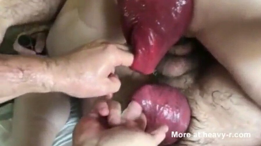 Gay Anal Fisting Prolapse. Warning – Extreme Content!