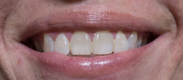 After 7 days of use with Smile Brilliant