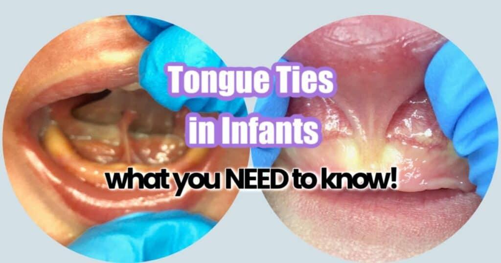 tongue tie in infants