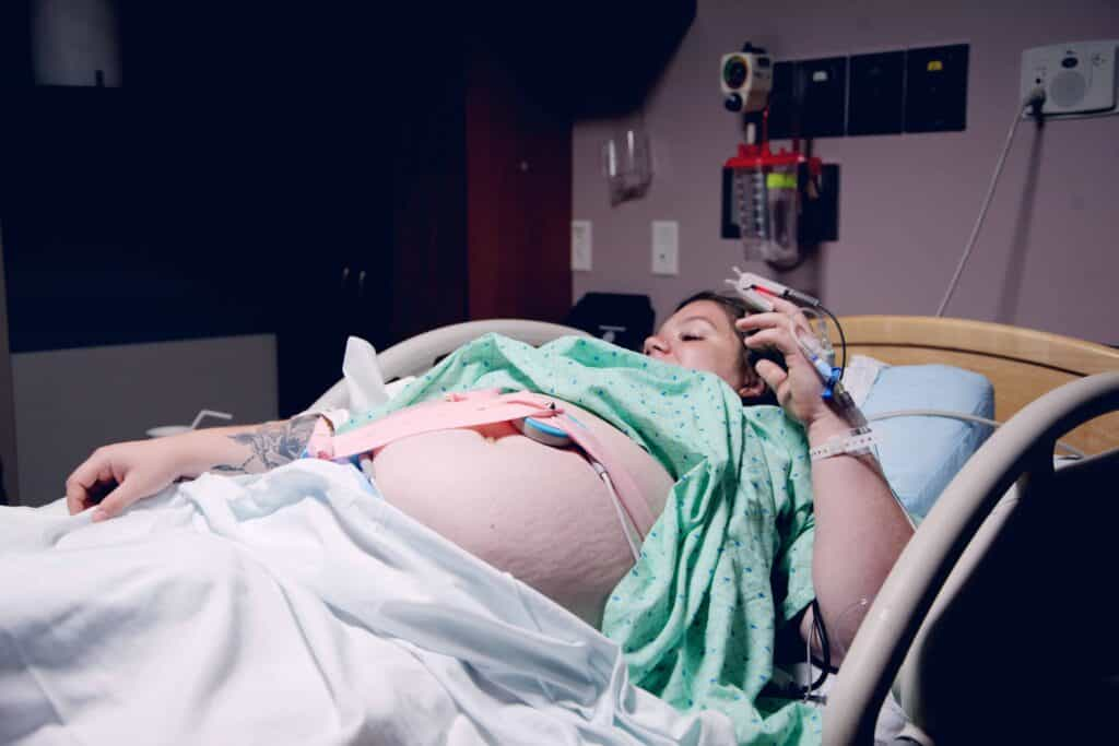 woman in labor with stretch marks