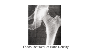 Foods That Reduce Bone Density