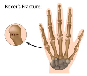 boxers-fracture-the-most-common-finger-fracture