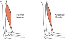 Muscle Atrophy - Prevent Muscle Wasting