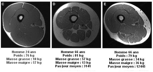 IRM montrant la différence entre 3 hommes (jeune, senior sédentaire et senior actif)