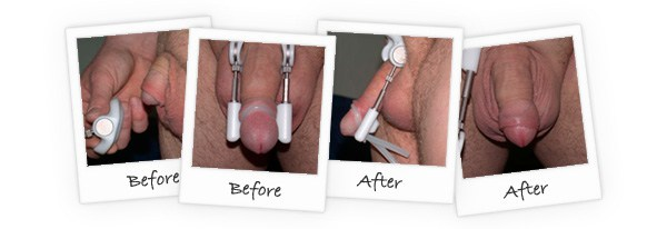 Penis girth and lenght enhancer ProExtender-before-and-after-reviews
