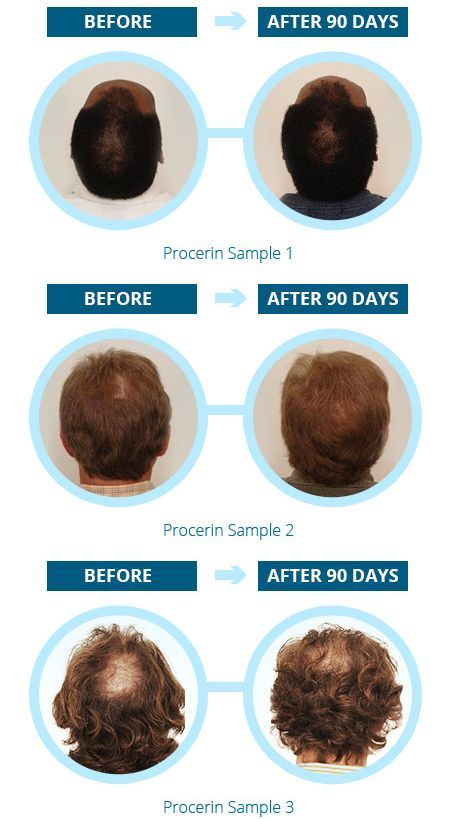 Procerin-real Results