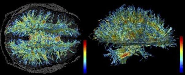 White Matter Structure in the Brain