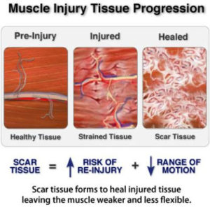 muscle tissue injuries
