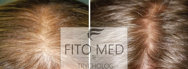 trycholog2