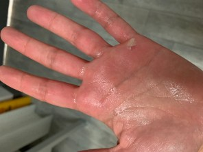hand with callous on it