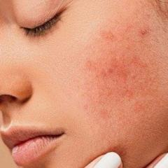 How-to-prevent-acne-from-whey-protein.jpg