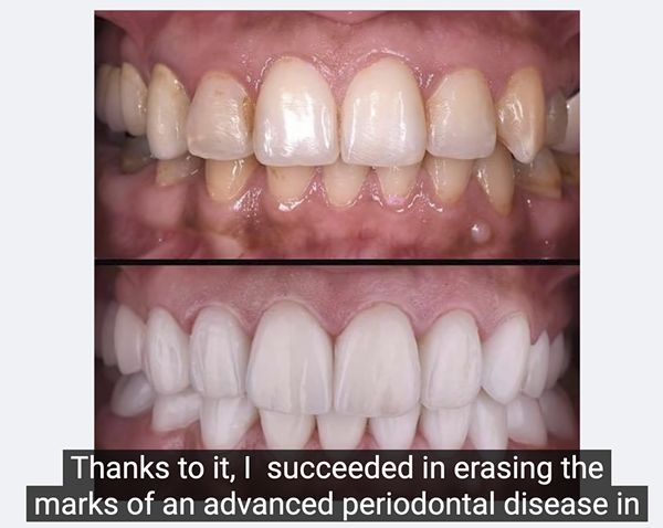 How Is Dentitox Pro Effective?