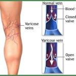 Are You Locking Your Knees – Prevent and Stop Spider Veins & Varicose Veins