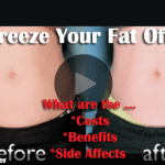 Freeze Your Fat – Is This For Real