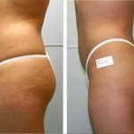 Use this Fitness Tip To Detox and Decrease Cellulite – Dry Skin Brushing