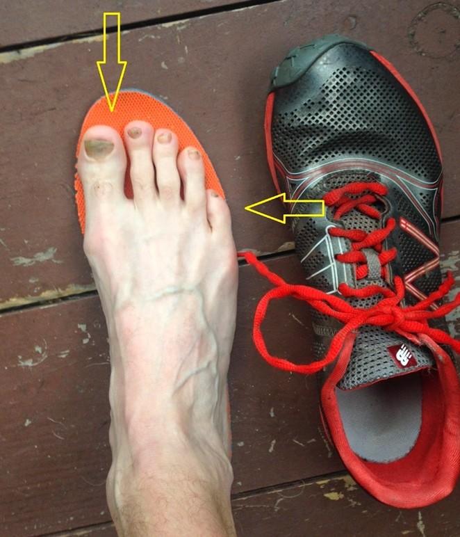 遇有黑甲的跑手,下次買鞋可考慮買大一點,預留空間給腳趾。