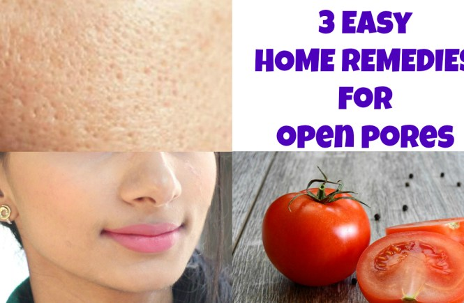 home-remedies-open-pores