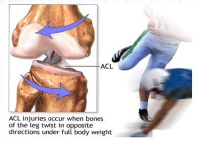 Fizio GP - puknuće prednjeg križnog ligamenta
