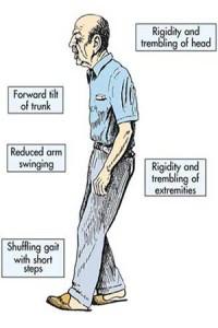 Fizio GP - Parkinsonova bolest