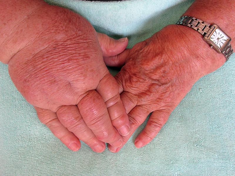 Fizio GP - poremećaji cirkulacije