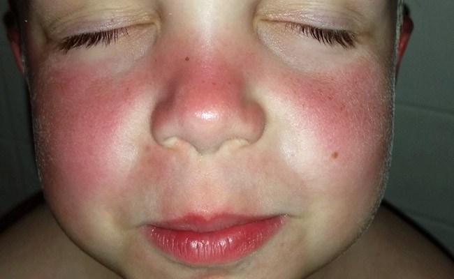 sunburn sunscreen