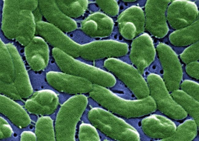 Vibrio vulnificus, the cholera-like bacteria, is not pretty.