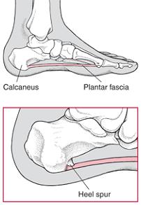 Calcaneal Spur