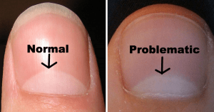 13 Ways The Moons On Your Nails May Reveal Health Problems FlawlessEnd
