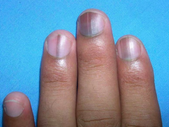 8 Things Our Nails Might Be Telling Us About Our Overall Health ...