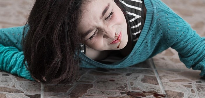 Young upset girl with a bleeding nose after falling down