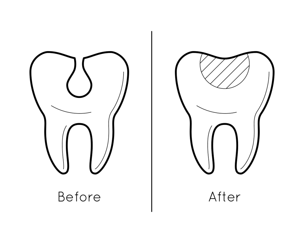 tooth enamel loss