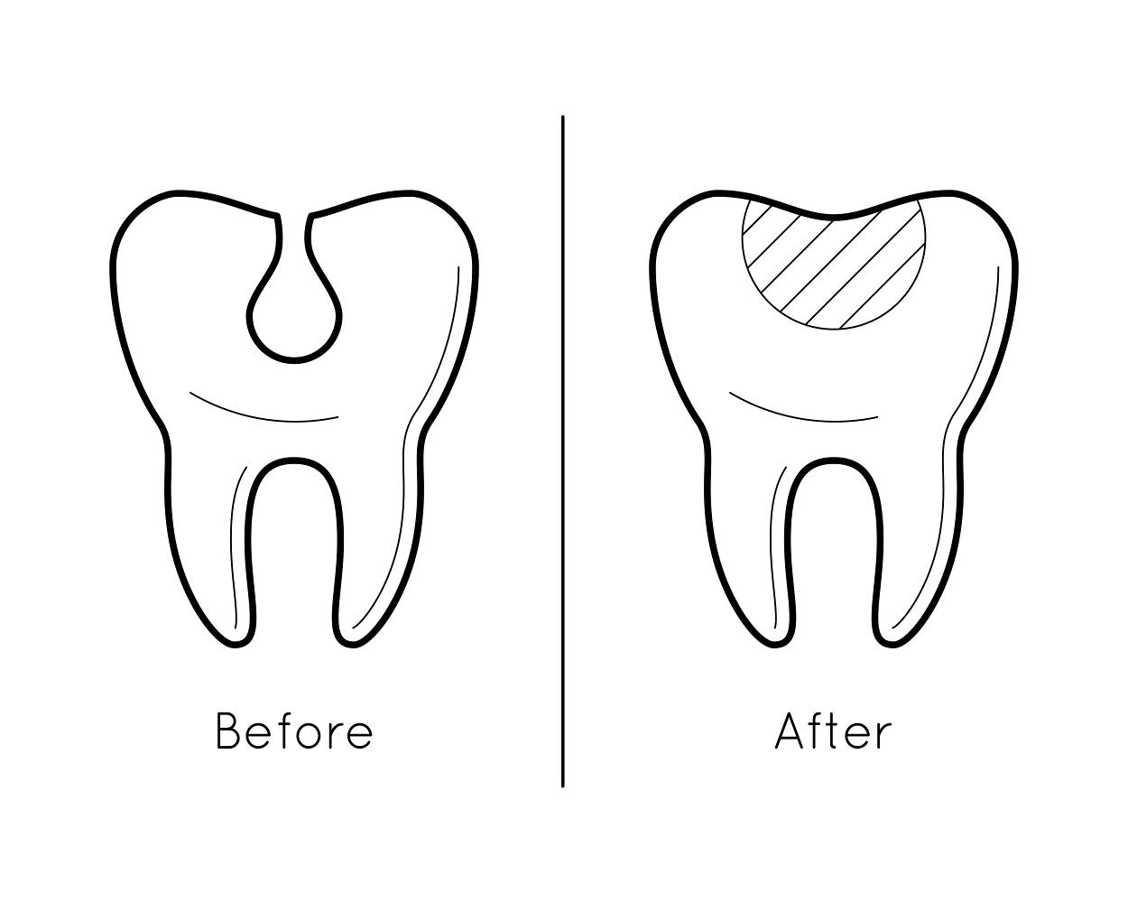 tooth enamel loss