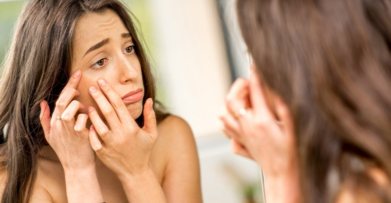 Get Acne Free Skin