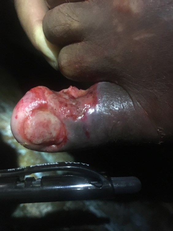 4-Day Cellulitis In Paraplegic Patient