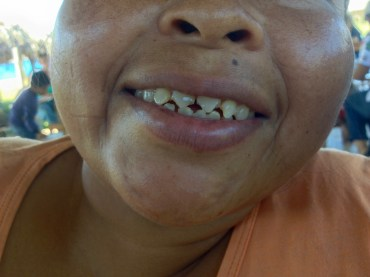 Traditional Ngabe Women Filed Their Teeth To Points