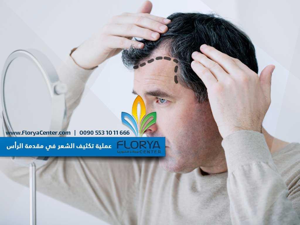 الثوم كنز طبيعي لإنبات شعر مقدمة الرأس مجلة الجميلة