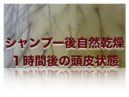 薄毛頭皮状態 2015-01-07