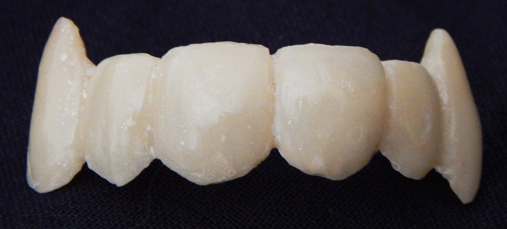 Custom made fangs created for Norine Dresser by Rees Smith, DDS.